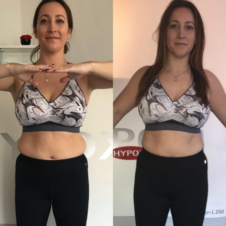 Before and After HYPOXI - Front View- Gillian