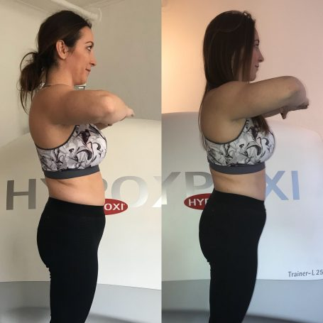 Before and After HYPOXI - Side View - Gillian